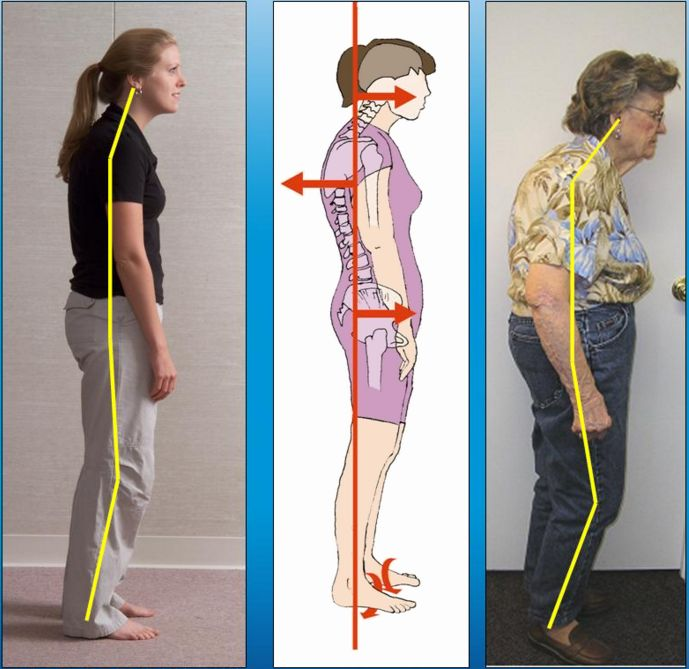 [Image: postural-distortions-and-posture1.jpg]
